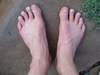 Brians_bare_feet